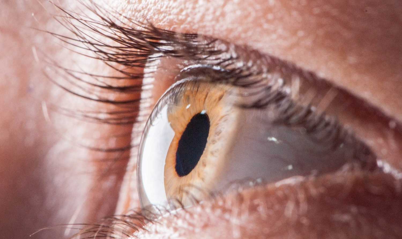 Traitement des pathologies de la cornée