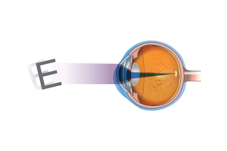 Traitement astigmatisme à Toulouse