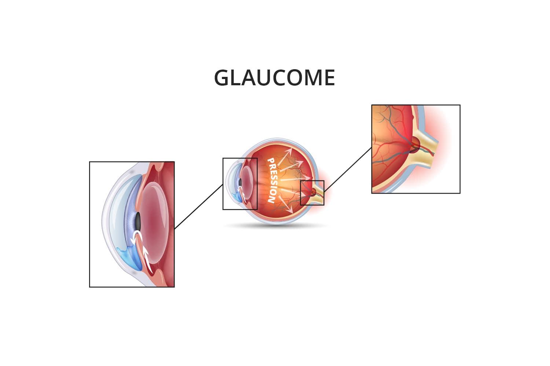 Traitement glaucome chronique à angle ouvert à Toulouse