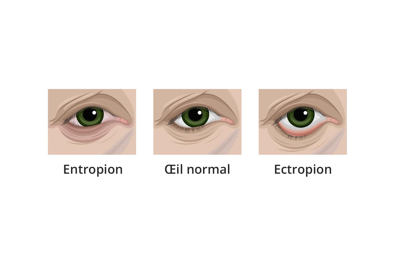 Chirurgie de l'entropion et de l'ectropion à Toulouse