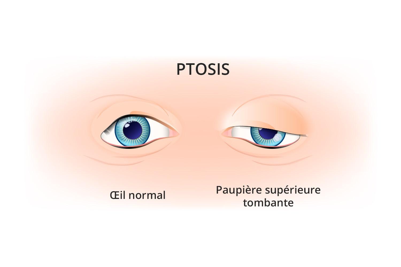 Chirurgie du ptosis à Toulouse