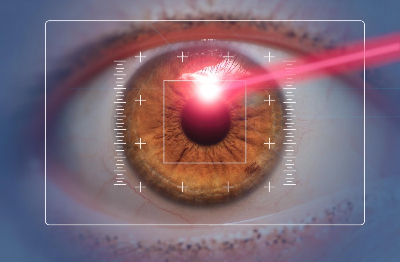 Photo-Kératectomie Réfractive (PKR) à Toulouse